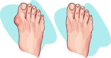 bigstock-Vector-Illustration-Of-Bunion-117769148